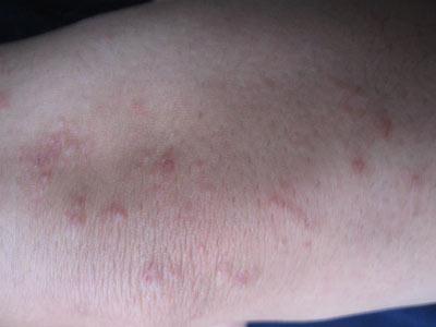 皮炎一般都有些什么症状?